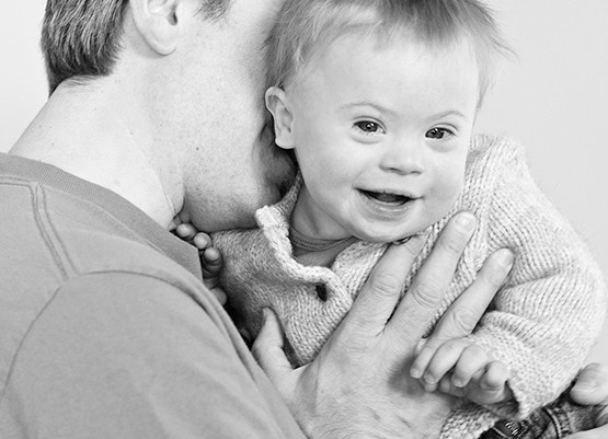 Parents of Babies with Down Syndrome - New Parents - CDSS